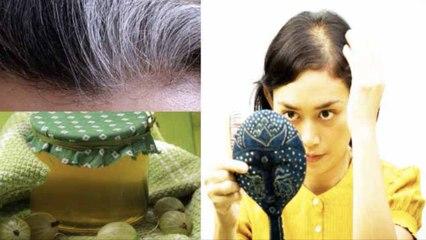 झड़ते बालों की वजह से बढ़ रहा है गंजापन तो ये तिब्बती आयुर्वेदिक नुस्खा दे सकता है राहत   Boldsky