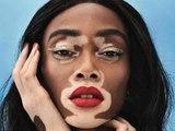 Atteinte de vitiligo, elle devient top model malgré les réactions des gens