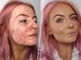Atteinte d'acné sévère, elle démontre l'efficacité du fond de teint