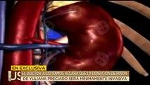 El médico encargado del transplante de riñón de Julio preciado será minimamente invasivo. | Ventaneando