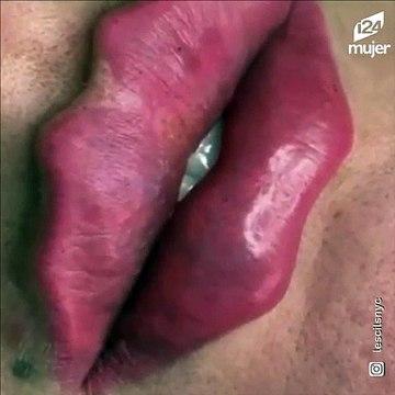 """""""Labios del diablo"""" la controversial tendencia estética que resulta peligrosa"""