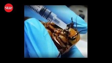 Hamam böceğini böyle ameliyat etti