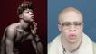 Albinos, j'ai fait de ma différence une force | Le speech d'Hassan Koné