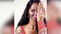 Chhapaak: देखिए Laxmi Agarwal की पूरी कहानी | FilmiBeat