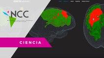 Una plataforma permite darle seguimiento a los pacientes con tumor cerebral