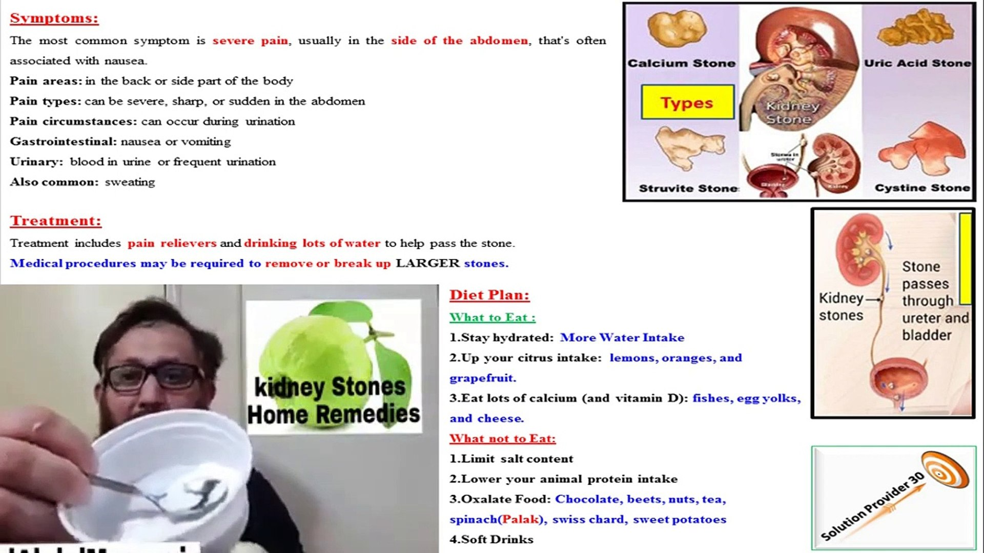Kidney Stone Treatment And Removal Using Guava Baking Soda 100 Working Video Dailymotion