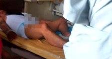 Damızlık boğalara verilen ilacı kullanan adam, 3 gün ağrılar içinde kıvranınca acilen cinsel organ ameliyatına alındı