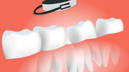 Dental surgery' Tooth-teeth-dentist_-_dental surgery in Hindi Urdu, dental surgery meaning,