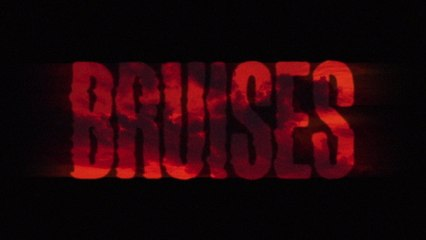 Lewis Capaldi - Bruises