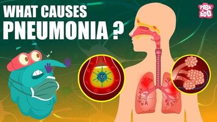 PNEUMONIA   What Is PNEUMONIA?   Respiratory Disease   The Dr Binocs Show   Peekaboo Kidz