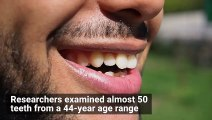Your Teeth Contain Your Life Story