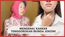 Mengenal Kanker Tenggorokan Ibunda Jokowi