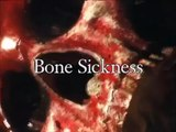 Bone Sickness Trailer