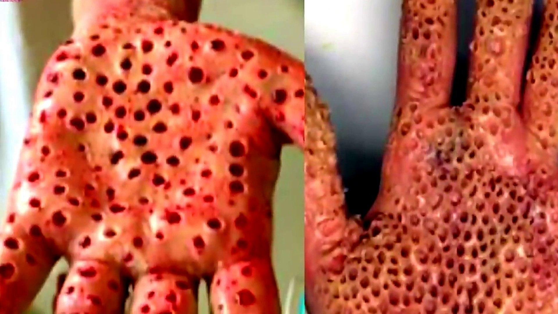 CoronaVirus Rumors in Hindi | Facts about Corona Virus| CoronaVirus Update in Hindi | कोरोना वायरस