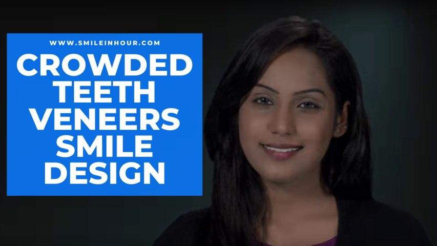 Crowded Teeth Veneers-Smile Makeover, Smile Design & Dental Makeovers | Smile in Hour® Dentist Review