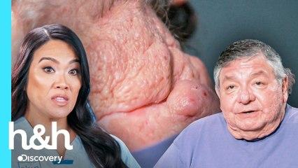 Hermanos sufren de raras lesiones en su piel | Dra. Sandra Lee: Especialista en piel | Discovery H&H