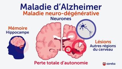 Alzheimer : symptômes, facteurs de risque, traitements
