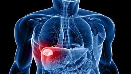 Gánh nặng từ bệnh viêm gan và xơ gan | VTC