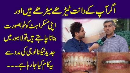 Agr ap k dant terhay merhay Hain aur apni muskurahat ko khubsurat bnana chahty Hain to Lahore me jadeed technology ki madad se ye Kam Kia ja Raha hai..