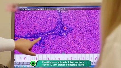 Candidata a vacina da Pfizer contra a covid-19 tem efeitos colaterais leves