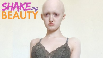 Bullied Because Of My Rare Genetic Condition - SHAKE MY BEAUTY