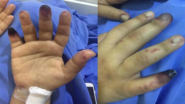 Coronavirus के बाद फैली बीमारी Gangrene Symptoms, Reasons | गैंगरीन बीमारी के कारण और लक्षण |Boldsky