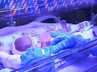 Cuando la prematuridad del bebé obedece a la reproducción asistida