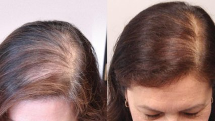 बाल दोबारा उगाने का जबरदस्त तरीका | Baal Dobara Ugane Ka Jabardast Tarika | Boldsky