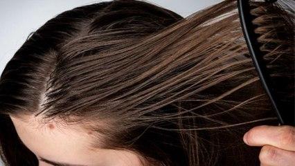 1 दिन मे ही Oily हो जाते हैं Hair, तो बस हर रोज कर लें ये काम | Tips for Oily Skin | Boldsky