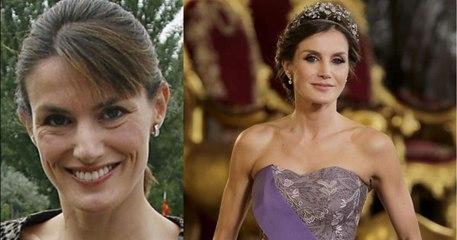 Las cirugías de la Reina Letizia: rinoplastia, mentoplastia, bichectomía y otros secretos