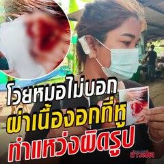 สาวผ่าเนื้องอกที่หู สุดท้ายออกมาผิดรูป โวยหมอถ้าเป็นแบบนี้ ควรบอกก่อน จะได้ไม่ผ่า