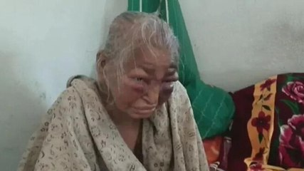 BJP alleges party worker's mother thrashed, TMC claims her face swollen due to ailment