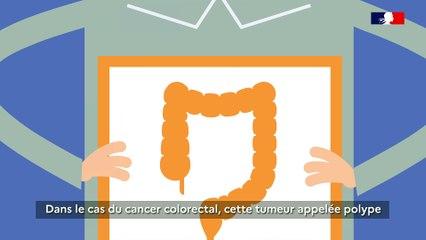 Cancer colorectal : pourquoi se faire dépister ?