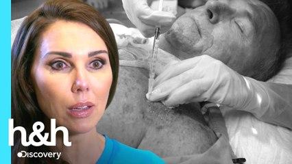 Homem deseja realizar implante capilar no peito | Dra. Cathy: Devolvendo a Autoestima | H&H Brasil