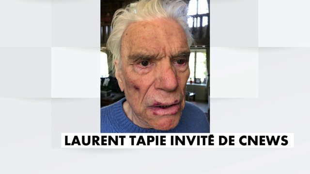"""Pascal Praud dévoile des photos des blessures de Bernard et Dominique Tapie : """"Les visages abîmés témoignent de la brutalité de ces agresseurs"""""""