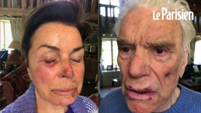 Les Tapie dévoilent des photos de leurs visages après l'agression dont ils ont été victimes