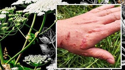 वो पौधा जो सांप से भी ज्यादा है जहरीला, केवल छू लेने से हो सकती है आपकी मौत!