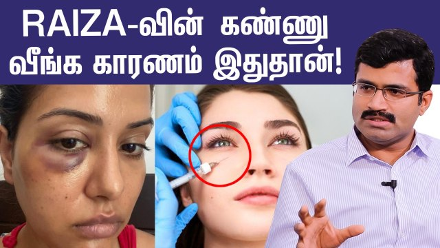 Facial treatments ஆபத்தா?  Raiza-க்கு என்ன ஆச்சு?   Doctor Explains About Cosmetic Procedures