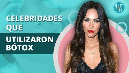 Celebridades que deformaron sus rostros con bótox como Zac Efron | Celebrities who deformed their faces with botox like Zac Efron