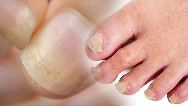 Corona Recovery के बाद Patients के Nails में दिखे ये नए Symptoms | Boldsky