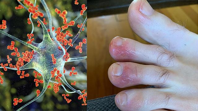 Coronavirus : पैरों में दिख सकते हैं Corona के ये Symptoms,समझें और जांच कराएं । Boldsky