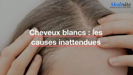 Cheveux blancs : les causes inattendues