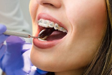 Odontólogo diz que tratamento ortodôntico tem que ser concluído sem pressa para remover aparelho