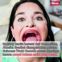 Wanita miliki mulut terbesar di dunia