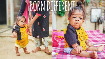 The 26-Year-Old Trapped In A Toddler's Body | BORN DIFFERENT
