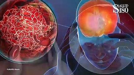3 padecimientos que elevan tus triglicéridos   Salud180