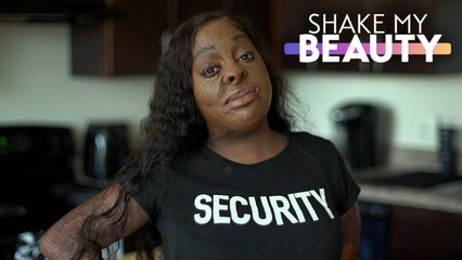 I'm 70% Burnt - But It Won't Stop Me Acting | SHAKE MY BEAUTY