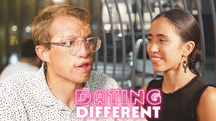 My Burns Stop Me Finding Love - Will My Blind Date Care? | DATING DIFFERENT