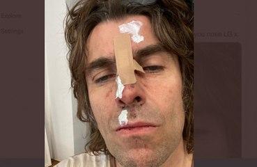 リアム・ギャラガー、ヘリコプターから落ち鼻を怪我