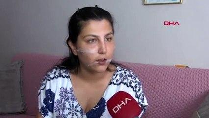 104 yerinden bıçakladığı eşinin başında sigara içmiş!